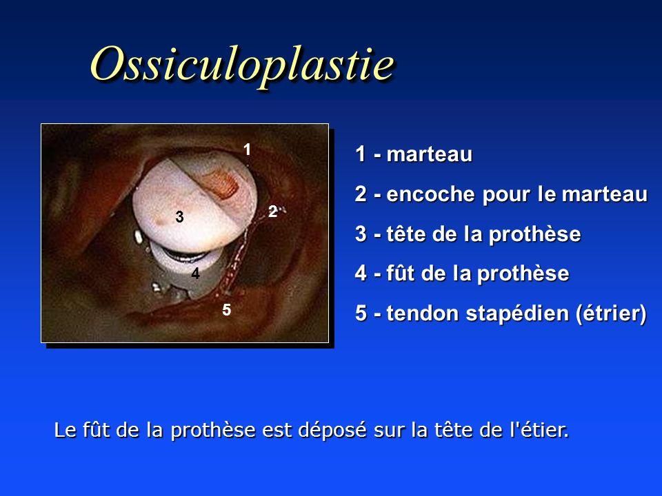 Ossiculoplastie 1 - marteau 2 - encoche pour le marteau