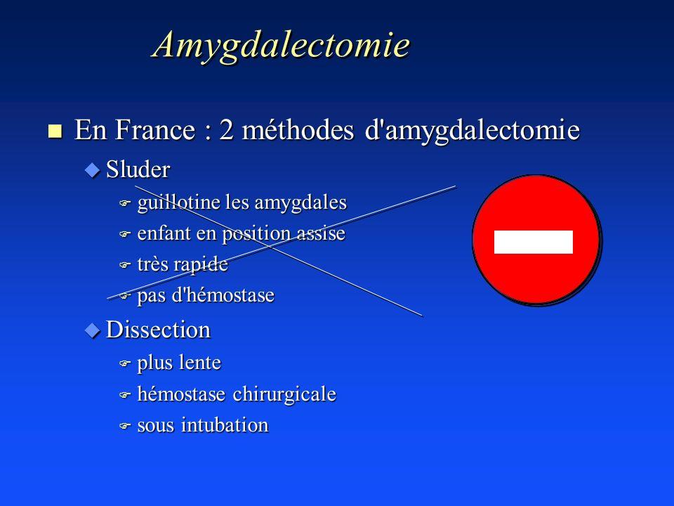 Amygdalectomie En France : 2 méthodes d amygdalectomie Sluder