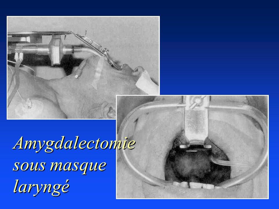 Amygdalectomie sous masque laryngé