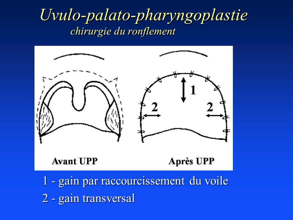 Uvulo-palato-pharyngoplastie chirurgie du ronflement