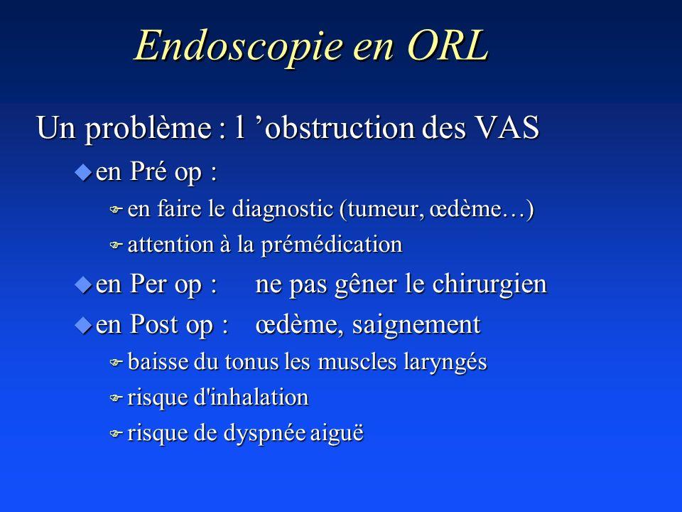 Endoscopie en ORL Un problème : l 'obstruction des VAS en Pré op :
