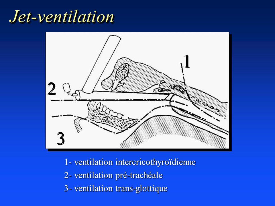 Jet-ventilation 1 2 3 1- ventilation intercricothyroïdienne
