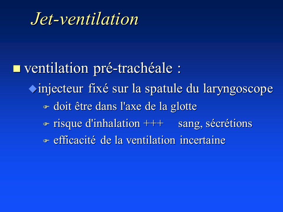 Jet-ventilation ventilation pré-trachéale :