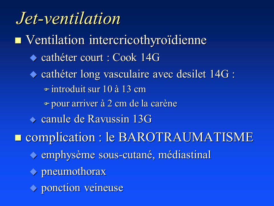 Jet-ventilation Ventilation intercricothyroïdienne
