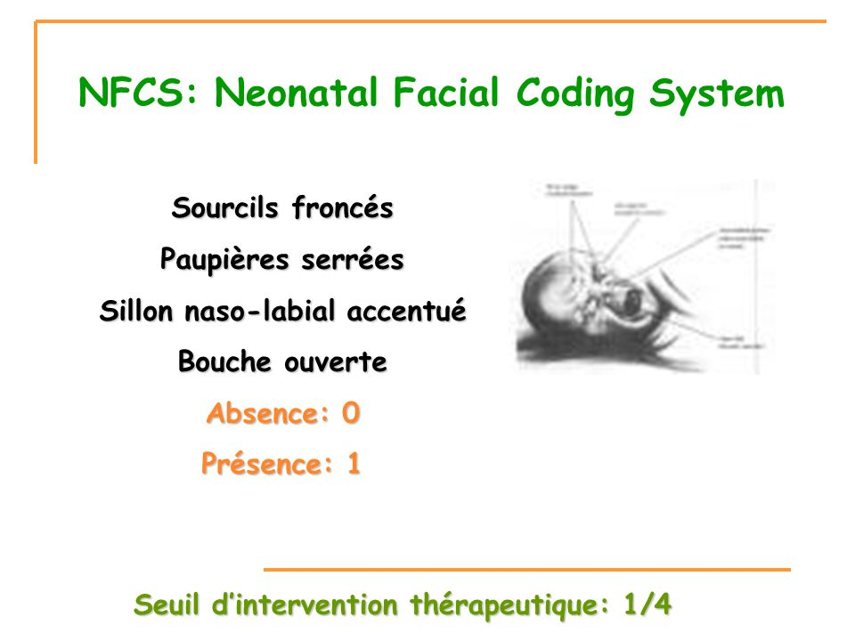 NFCS: Neonatal Facial Coding System