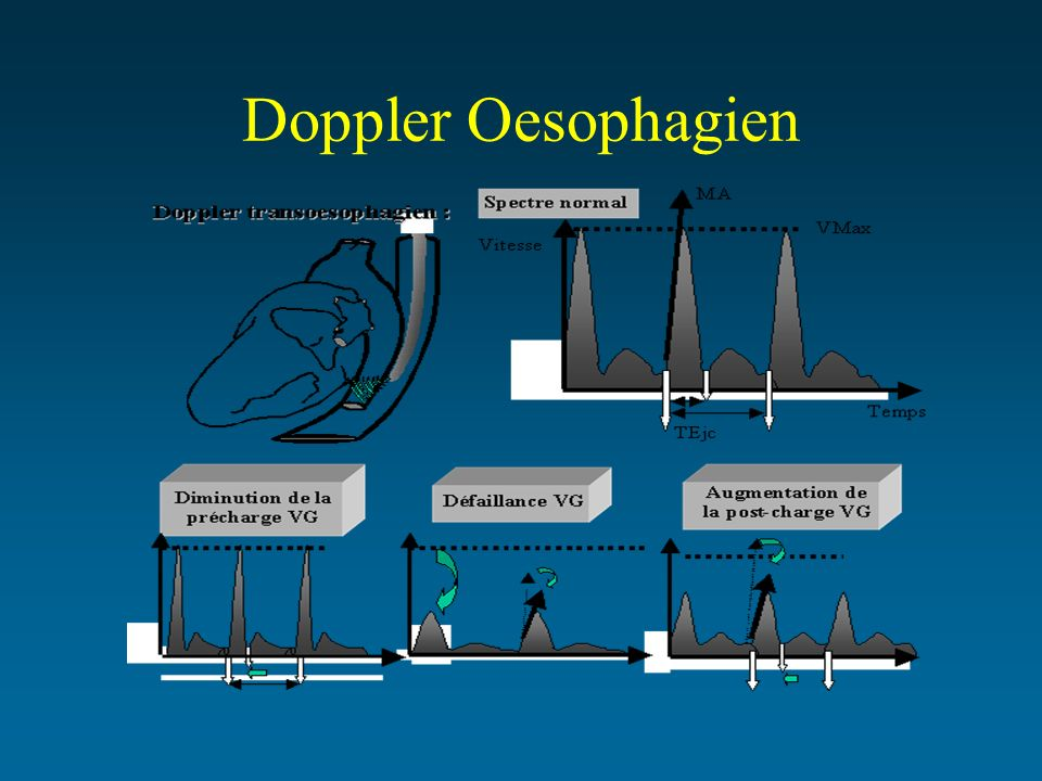 Doppler Oesophagien