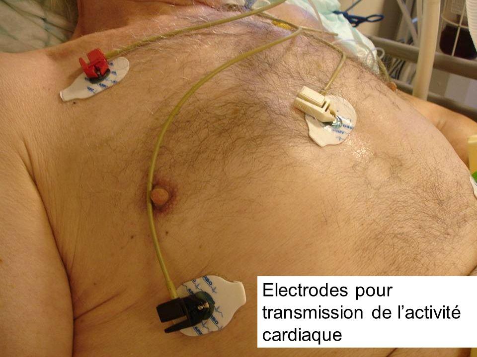 Electrodes pour transmission de l'activité cardiaque