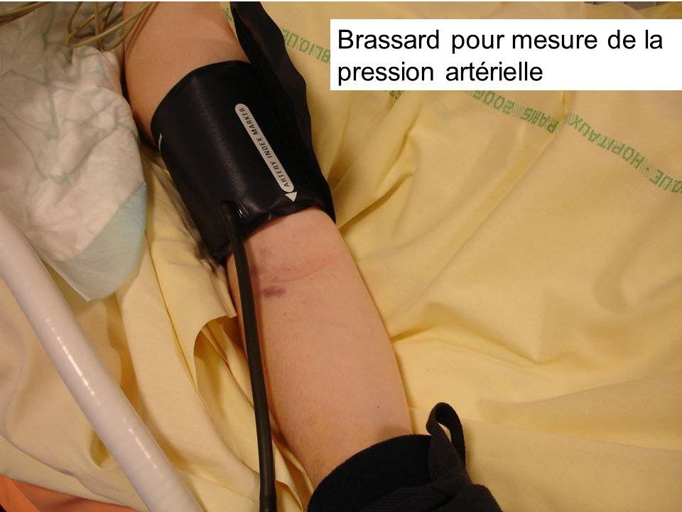 Brassard pour mesure de la pression artérielle