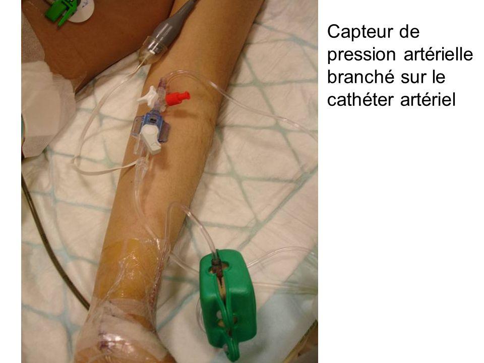 Capteur de pression artérielle branché sur le cathéter artériel