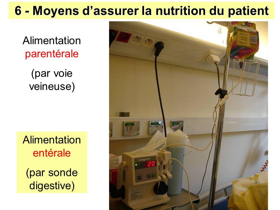 6 - Moyens d'assurer la nutrition du patient