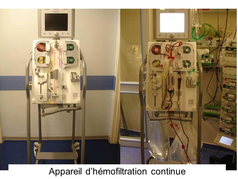 Appareil d'hémofiltration continue