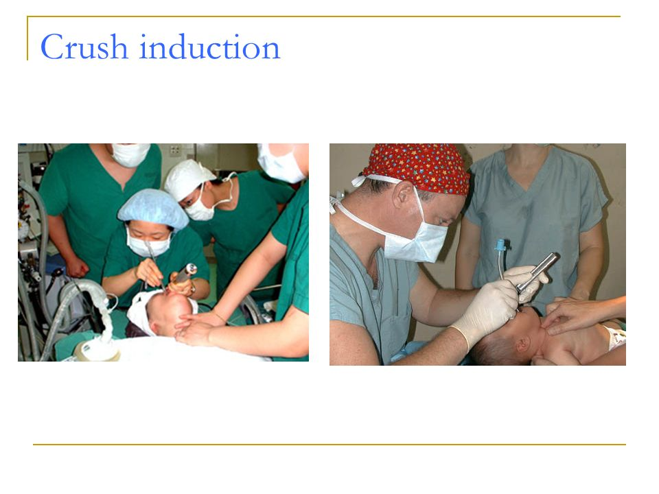 Crush induction