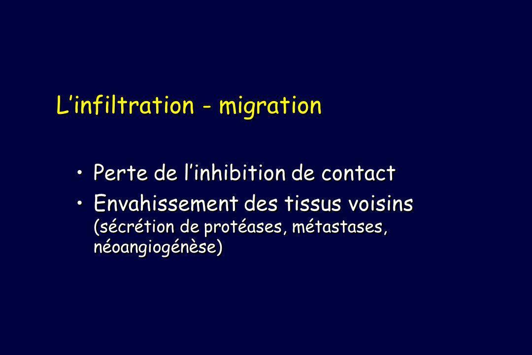 L'infiltration - migration
