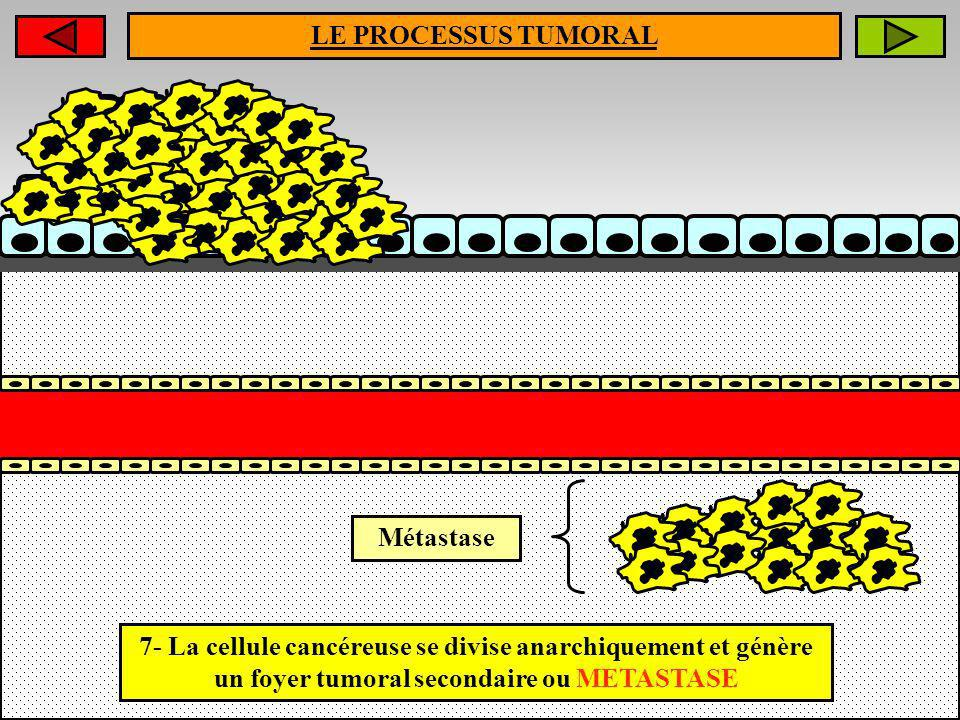 LE PROCESSUS TUMORAL Métastase.