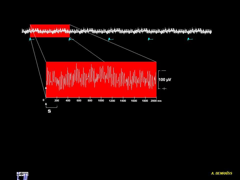 A. BENRAÏSS L M s 2000 ms 1000 200 400 600 800 1200 1400 1600 1800 100 µV