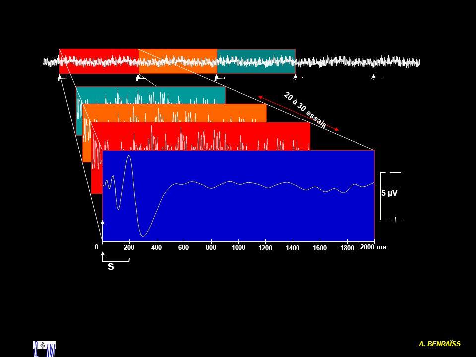 L M 20 à 30 essais 5 µV A. BENRAÏSS 2000 ms 1000 200 400 600 800 1200