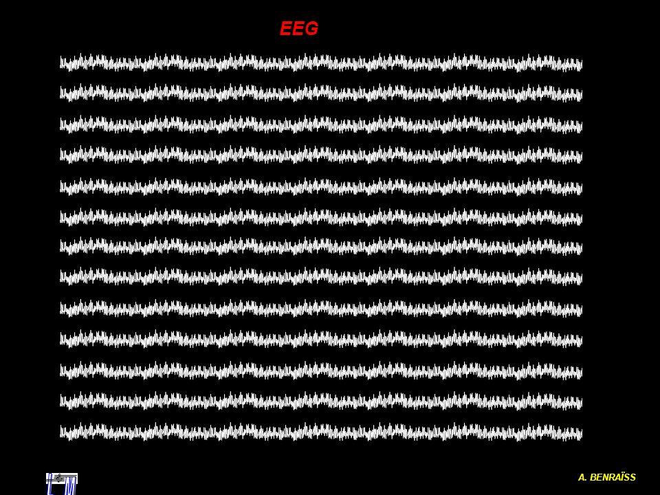EEG A. BENRAÏSS L M