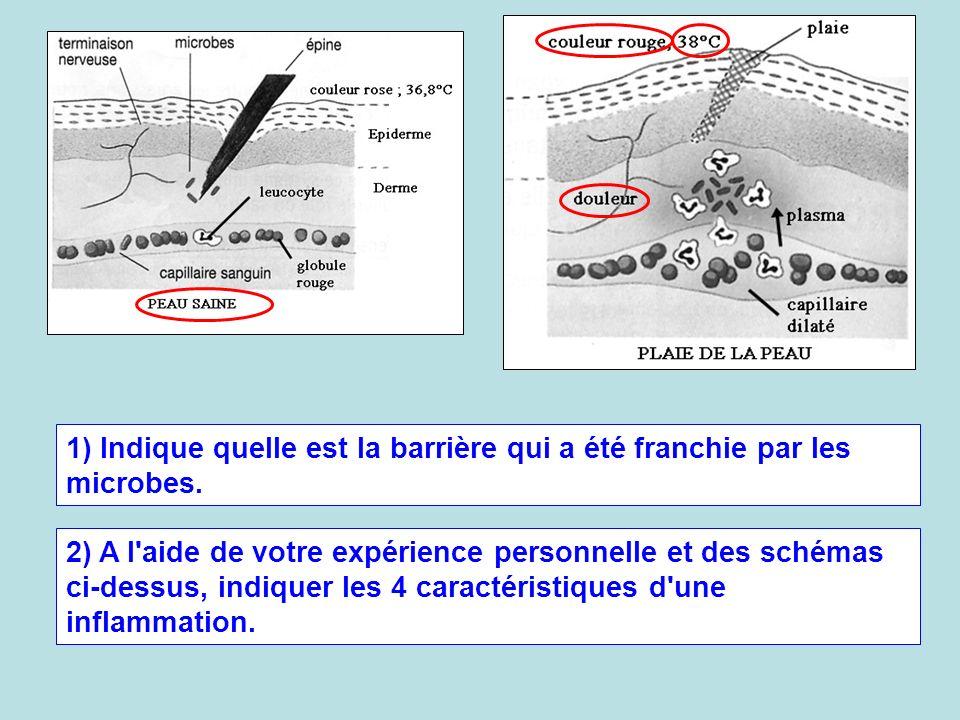 1) Indique quelle est la barrière qui a été franchie par les microbes.