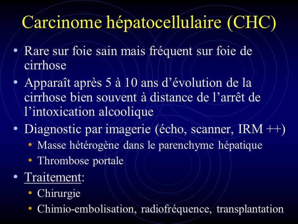 Carcinome hépatocellulaire (CHC)