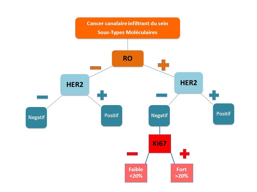 Cancer canalaire infiltrant du sein Sous-Types Moléculaires