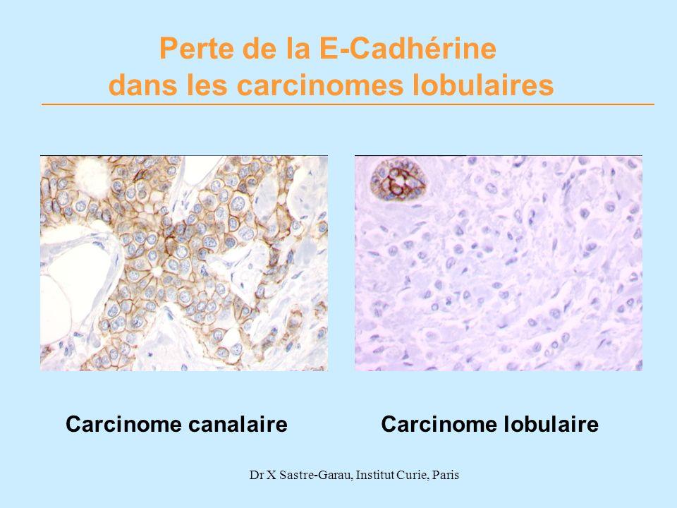 Perte de la E-Cadhérine dans les carcinomes lobulaires