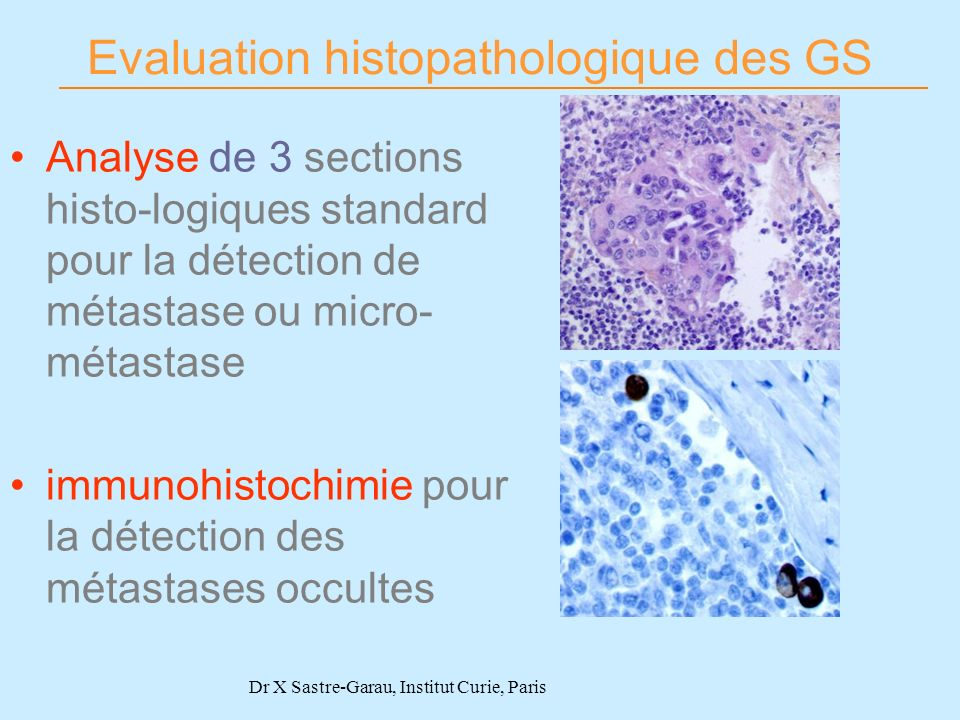 Evaluation histopathologique des GS
