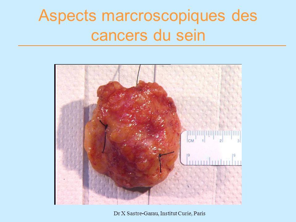 Aspects marcroscopiques des cancers du sein