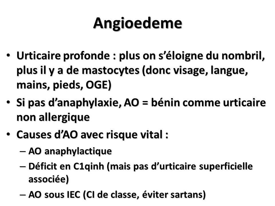 Angioedeme Urticaire profonde : plus on s'éloigne du nombril, plus il y a de mastocytes (donc visage, langue, mains, pieds, OGE)