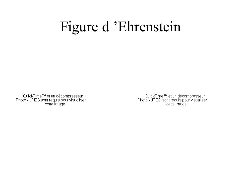 Figure d 'Ehrenstein