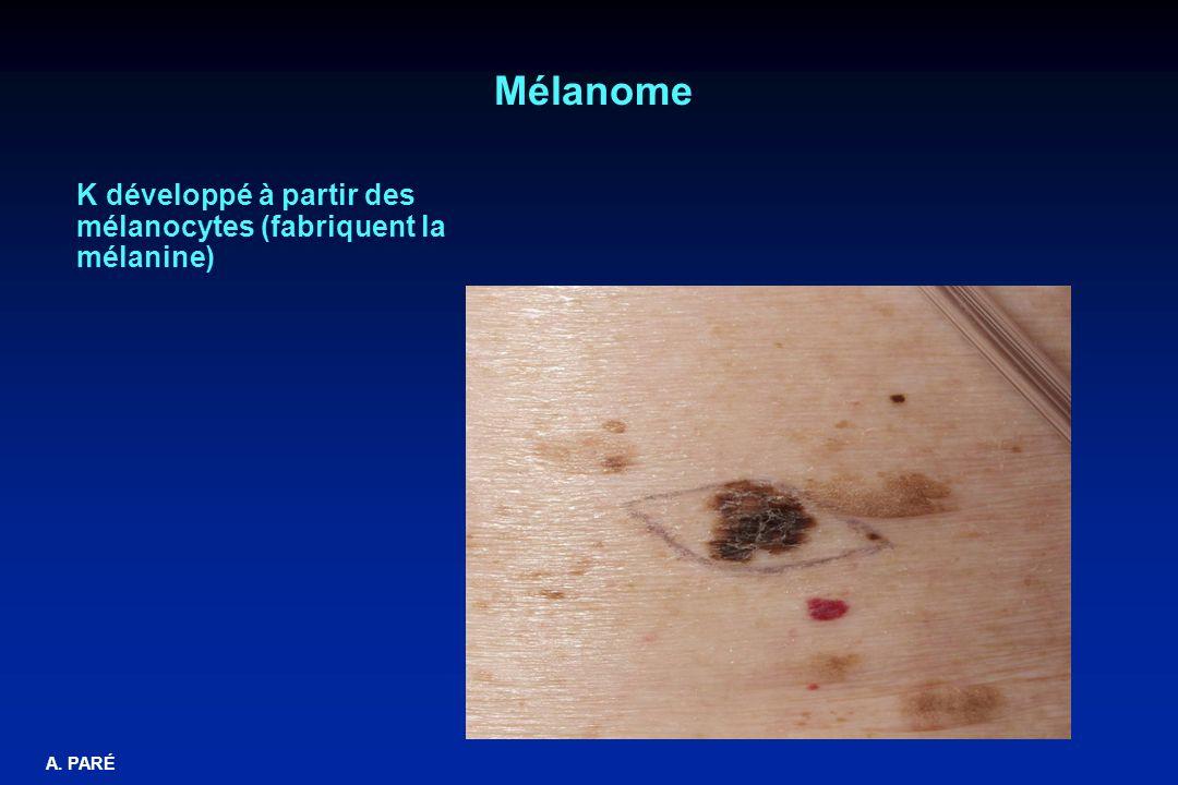 Mélanome K développé à partir des mélanocytes (fabriquent la mélanine)