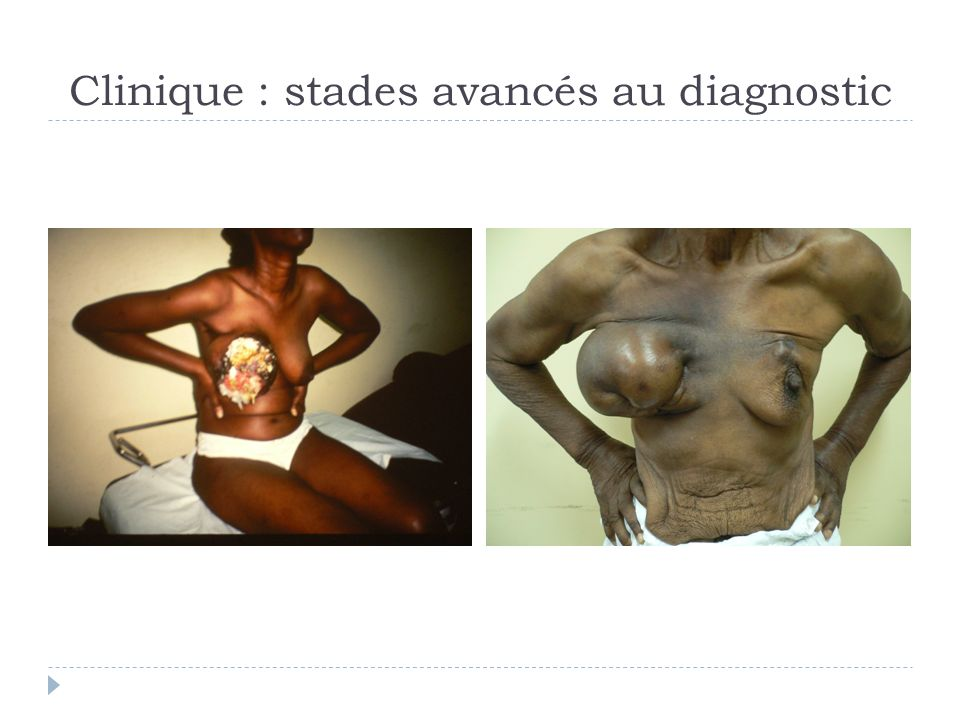 Clinique : stades avancés au diagnostic