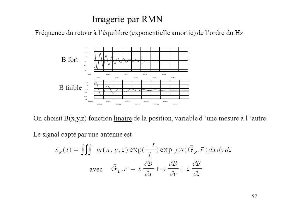 Imagerie par RMN Fréquence du retour à l'équilibre (exponentielle amortie) de l'ordre du Hz. 0.0000.