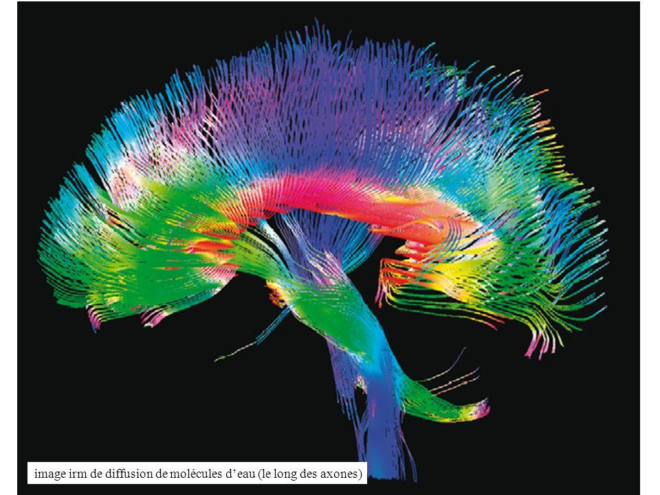 image irm de diffusion de molécules d'eau (le long des axones)