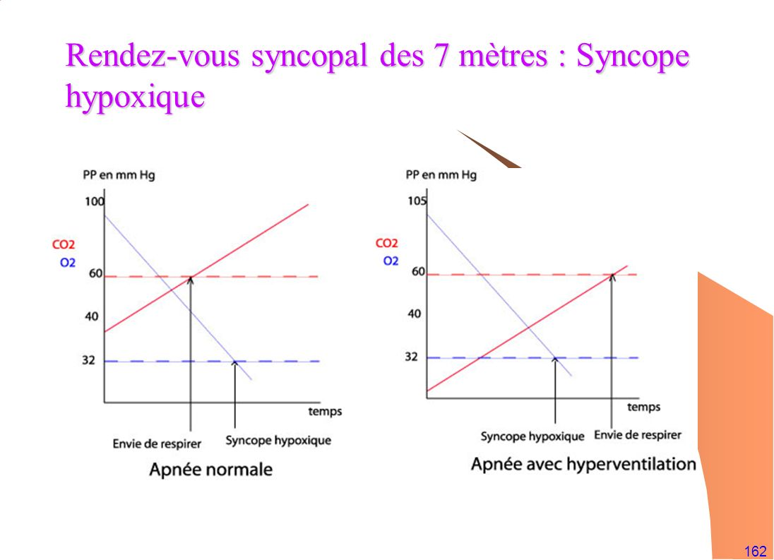 Rendez-vous syncopal des 7 mètres : Syncope hypoxique