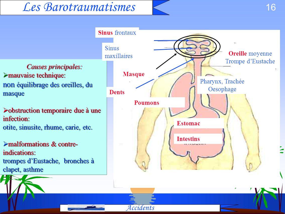 Les Barotraumatismes Causes principales: