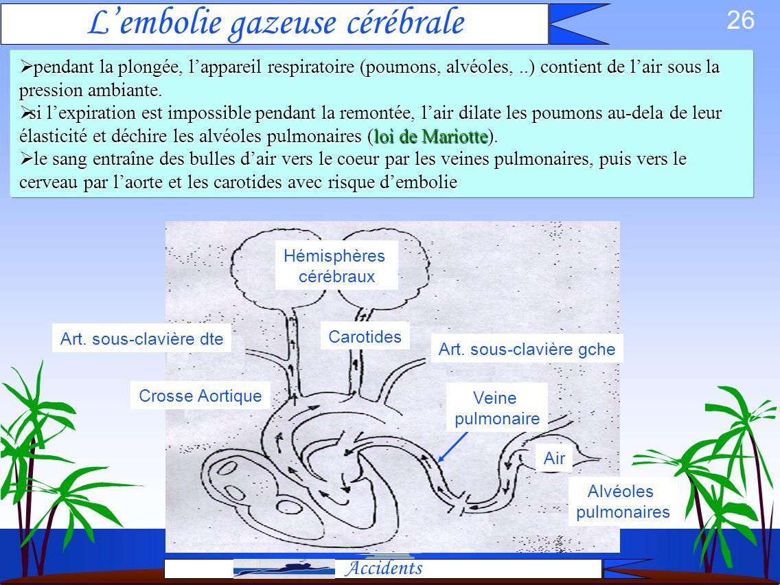 L'embolie gazeuse cérébrale