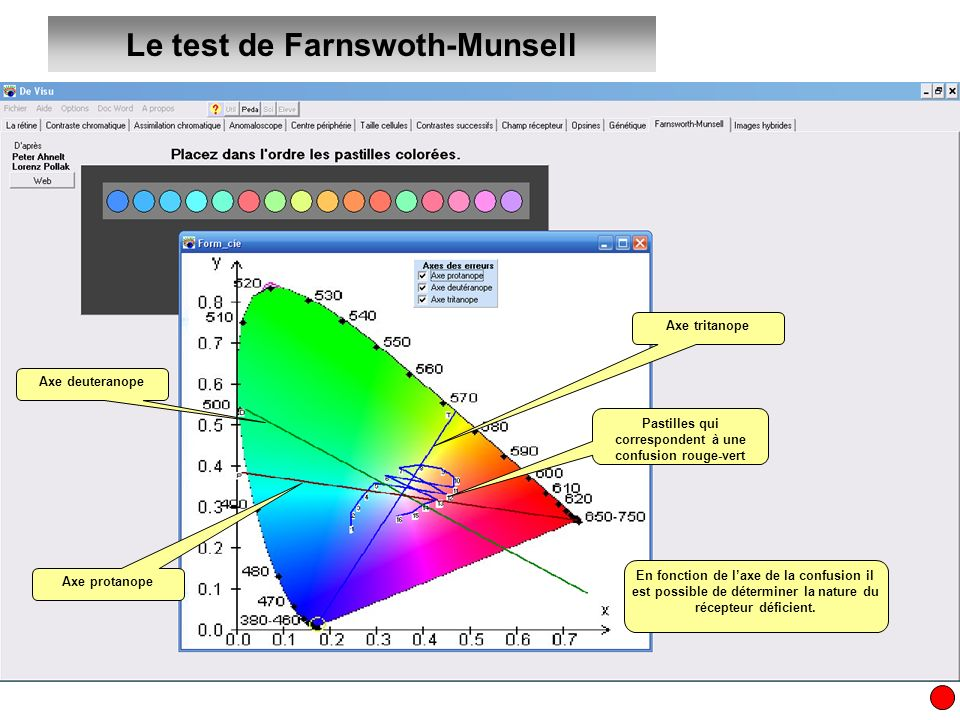 Le test de Farnswoth-Munsell