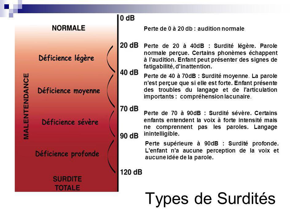 Types de Surdités Perte de 0 à 20 db : audition normale