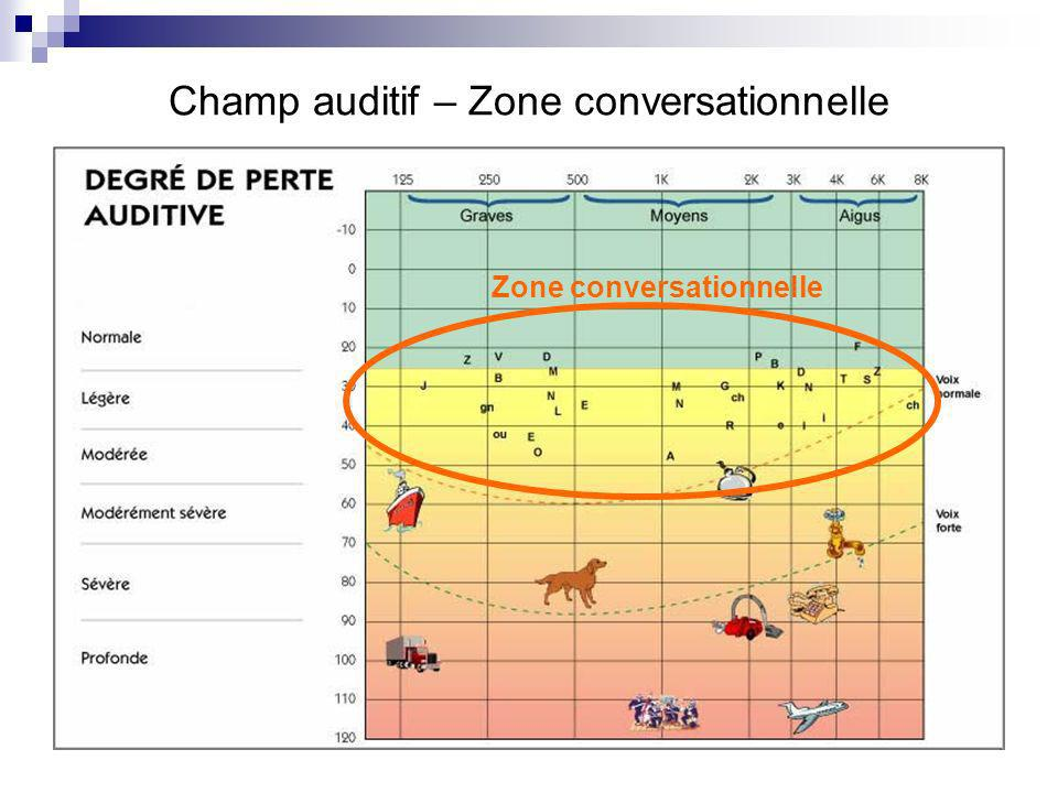 Champ auditif – Zone conversationnelle