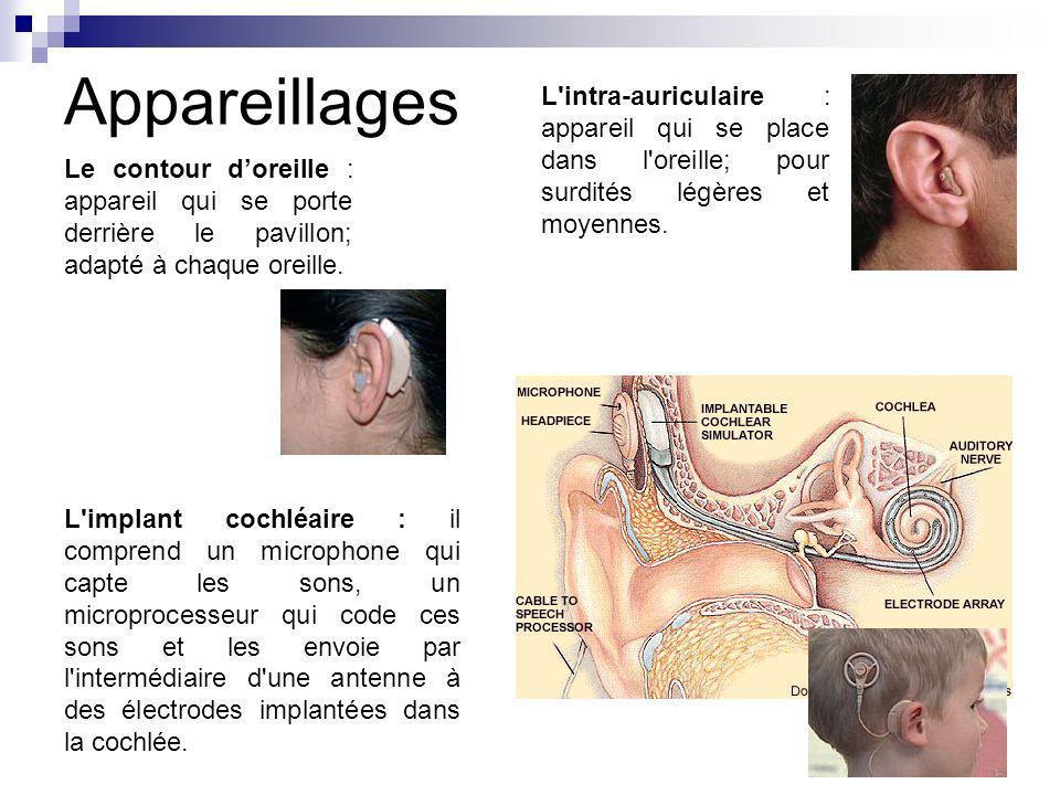 Appareillages L intra-auriculaire : appareil qui se place dans l oreille; pour surdités légères et moyennes.