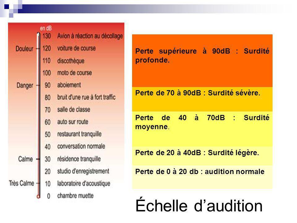 Échelle d'audition Perte supérieure à 90dB : Surdité profonde.