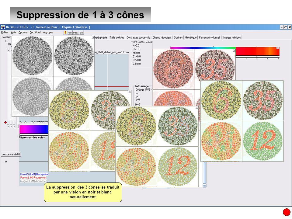 Suppression de 1 à 3 cônesLa suppression des 3 cônes se traduit par une vision en noir et blanc naturellement.
