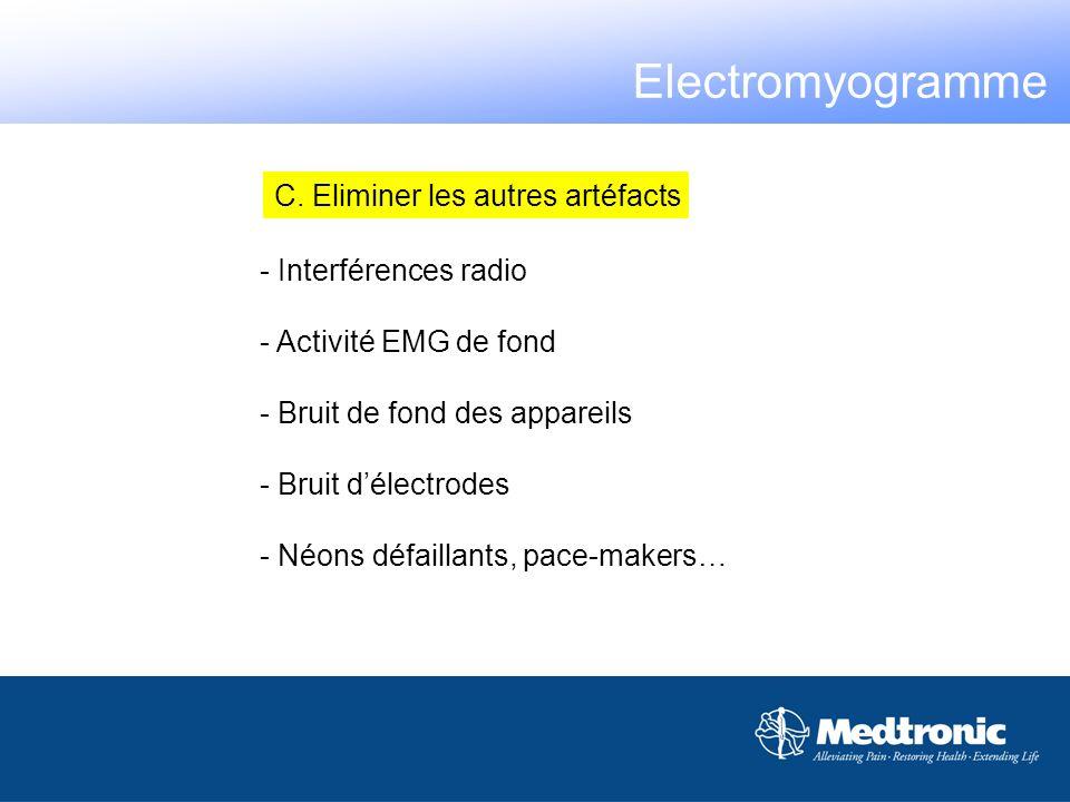 Electromyogramme C. Eliminer les autres artéfacts Interférences radio