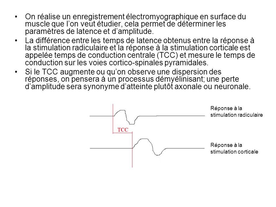 On réalise un enregistrement électromyographique en surface du muscle que l'on veut étudier, cela permet de déterminer les paramètres de latence et d'amplitude.