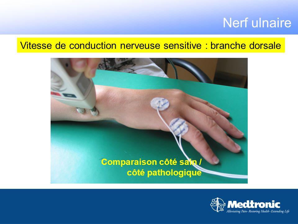 Nerf ulnaireVitesse de conduction nerveuse sensitive : branche dorsale.