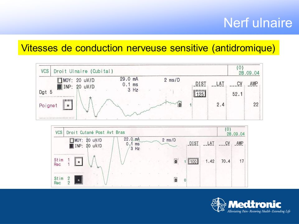 Nerf ulnaire Vitesses de conduction nerveuse sensitive (antidromique)