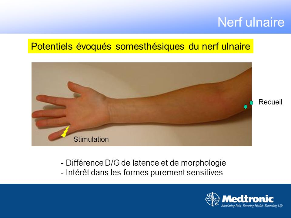 Nerf ulnaire Potentiels évoqués somesthésiques du nerf ulnaire