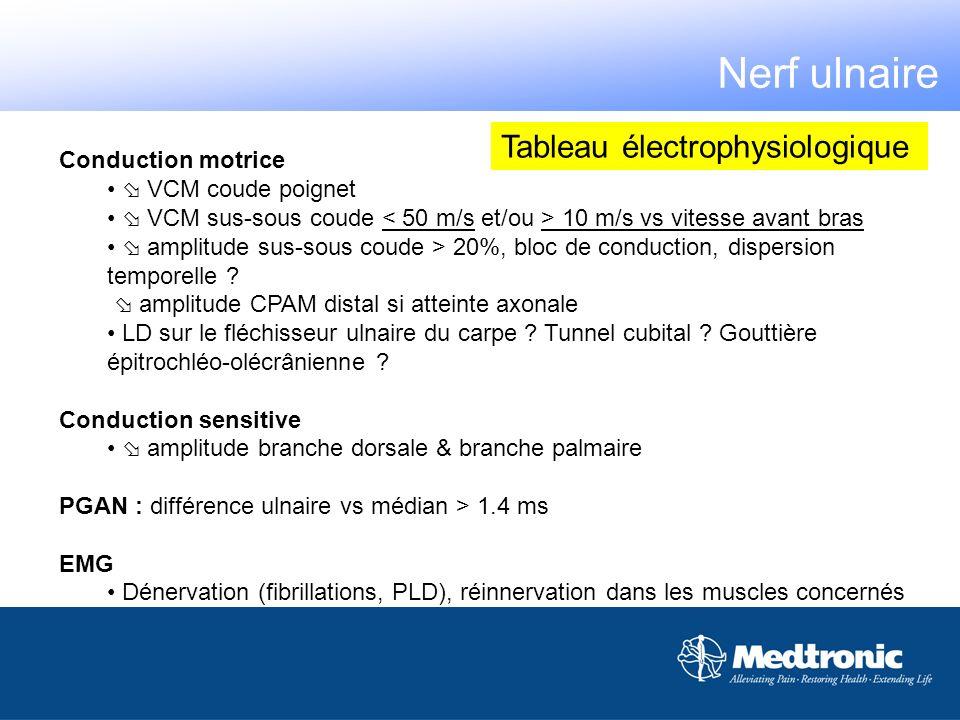 Nerf ulnaire Tableau électrophysiologique Conduction motrice