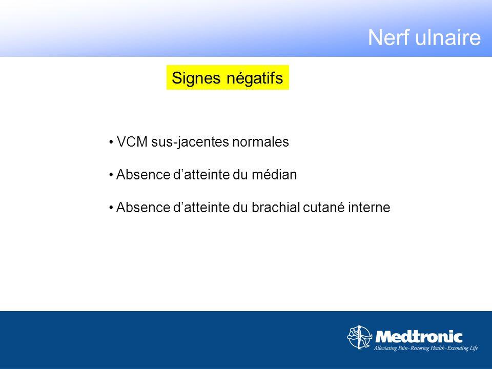 Nerf ulnaire Signes négatifs VCM sus-jacentes normales