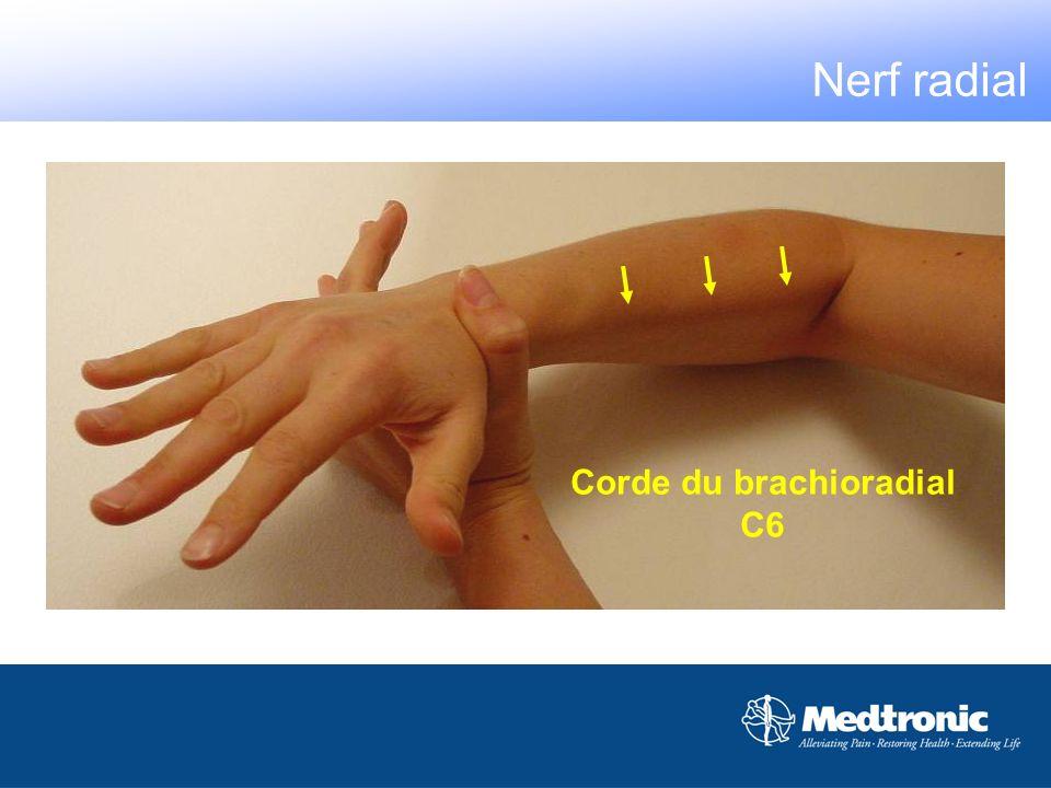 Corde du brachioradial